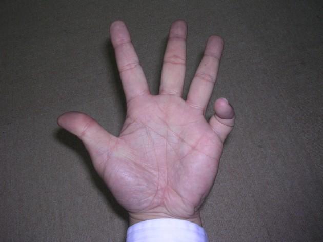 小指だけ曲げる
